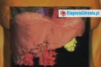 Choroby leczone na oddziale zakaznym cz.2wirusowe zapalenie wątroby