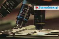 Choroby leczone na oddziale zakaznym cz.1choroby zakazne