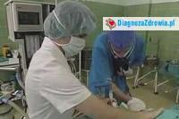 Ciąża i poród cz.2cesarskie cięcie
