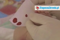 Fenyloketonuriadiagnostyka