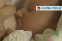 Fenyloketonuriaa ciąża
