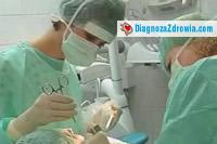 Implanty zębowe cz.2zabieg implantacji