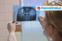 Implanty zębowe cz.4przebieg zabiegu