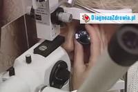 Jaskra odc.1 cz.3badania diagnostyczne