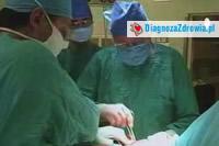 Nefropatia IGA Cz.4leczenie