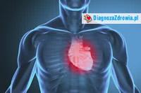 Kardiologia - niewydolność serca