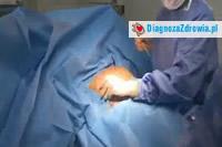 Bezpieczeństwo w chirurgii plastycznej  cz.3dobór implantów