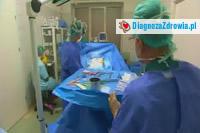 Bezpieczeństwo w chirurgii plastycznej  cz.5efekty