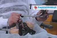 Protetyka cz.4współpraca lekarza z technikiem