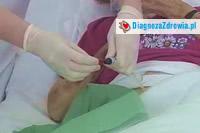 Przeszczep nerki cz.4po przeszczepie
