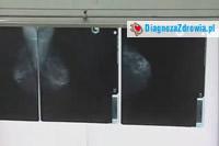 Rak piersi. Cz.2badania diagnostyczne.