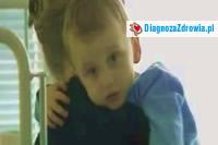 Stwardnienie rozsiane (SM) u dzieci. Odc.1