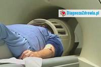 Stwardnienie rozsiane (SM). Cz.3badania diagnostyczne.