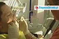 Stomatologia estetycznaodbudowa zębów
