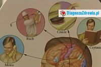 Udar mózguobjawy