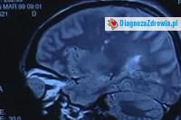 Udar mózgudiagnostyka