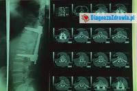 Urazy kręgosłupa. Cz.3badania diagnostyczne.