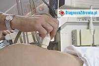 Wrodzone wady cewy nerwowej cz.4diagnostyka