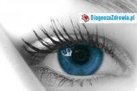 Zespół suchego oka cz.2objawy