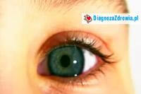 Zespół suchego oka cz.4badania diagnostyczne